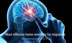 Most effective home remedies for migraines
