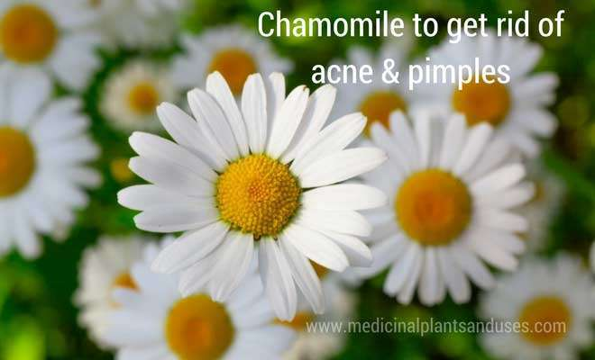 Chamomile for acne treatment