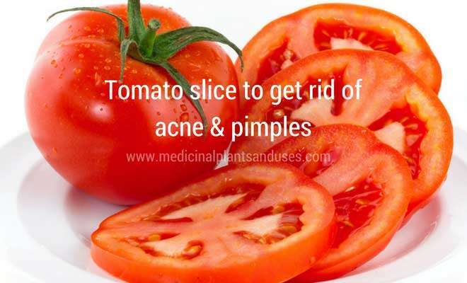 tomato slices to cure acne