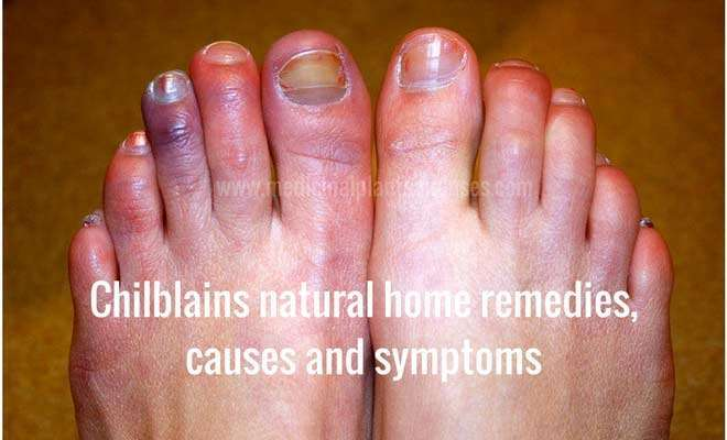 Chilblains natural home remedies, causes and symptoms