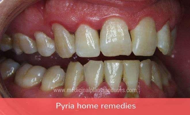 Pyria home remedies