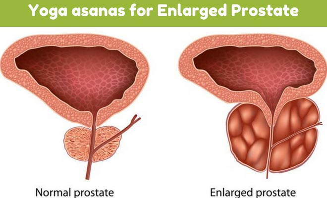 Yoga asanas for Enlarged Prostate