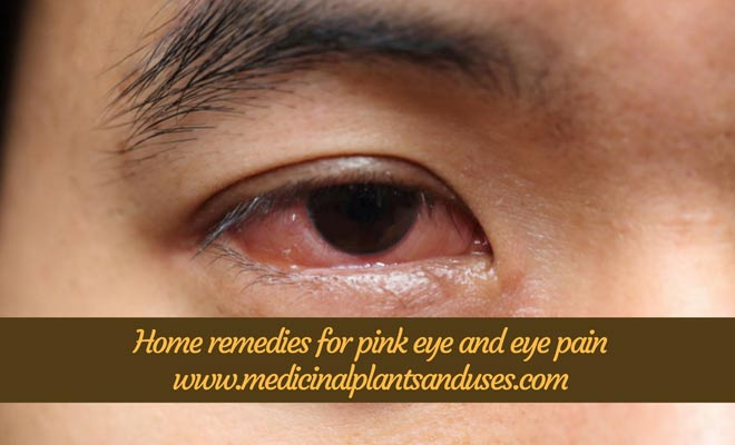 Home remedies for pink eye and eye pain
