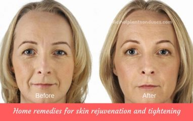 Home remedies for skin rejuvenation and tightening