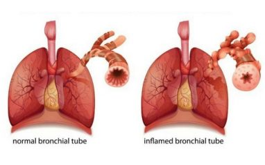 Top 7 Home Remedies for Bronchitis