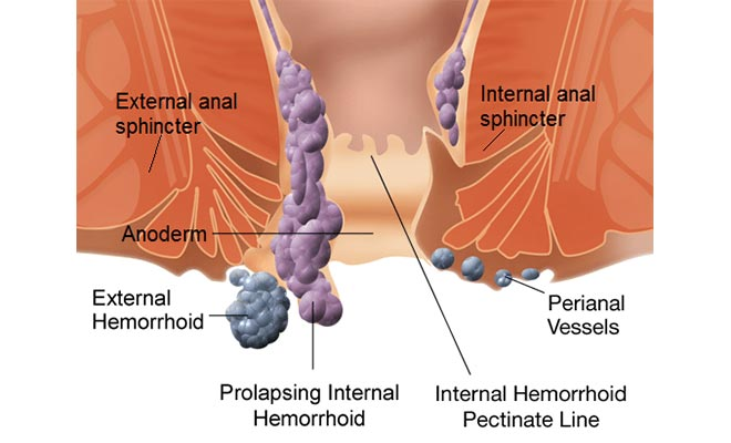 Types of hemorrhoids and different stages of piles