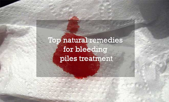 Top natural remedies for bleeding piles treatment
