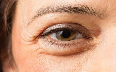 How to get rid of puffy eyes after crying