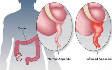 Home remedies for appendicitis