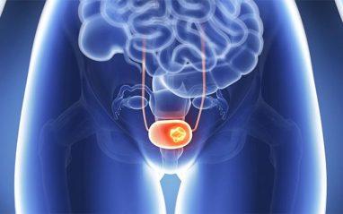 Top 10 healthy foods for uterus strengthening