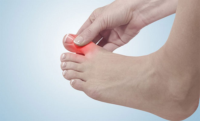 Home Remedies for Sore Big Toe