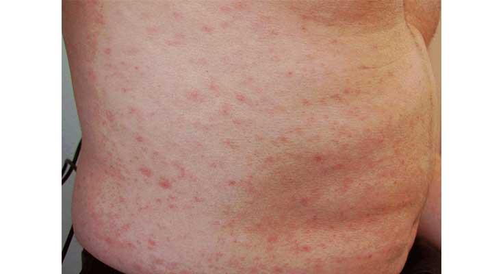 Chikungunya symptoms
